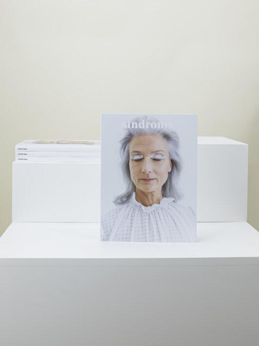 Issue #3: White Sindrom